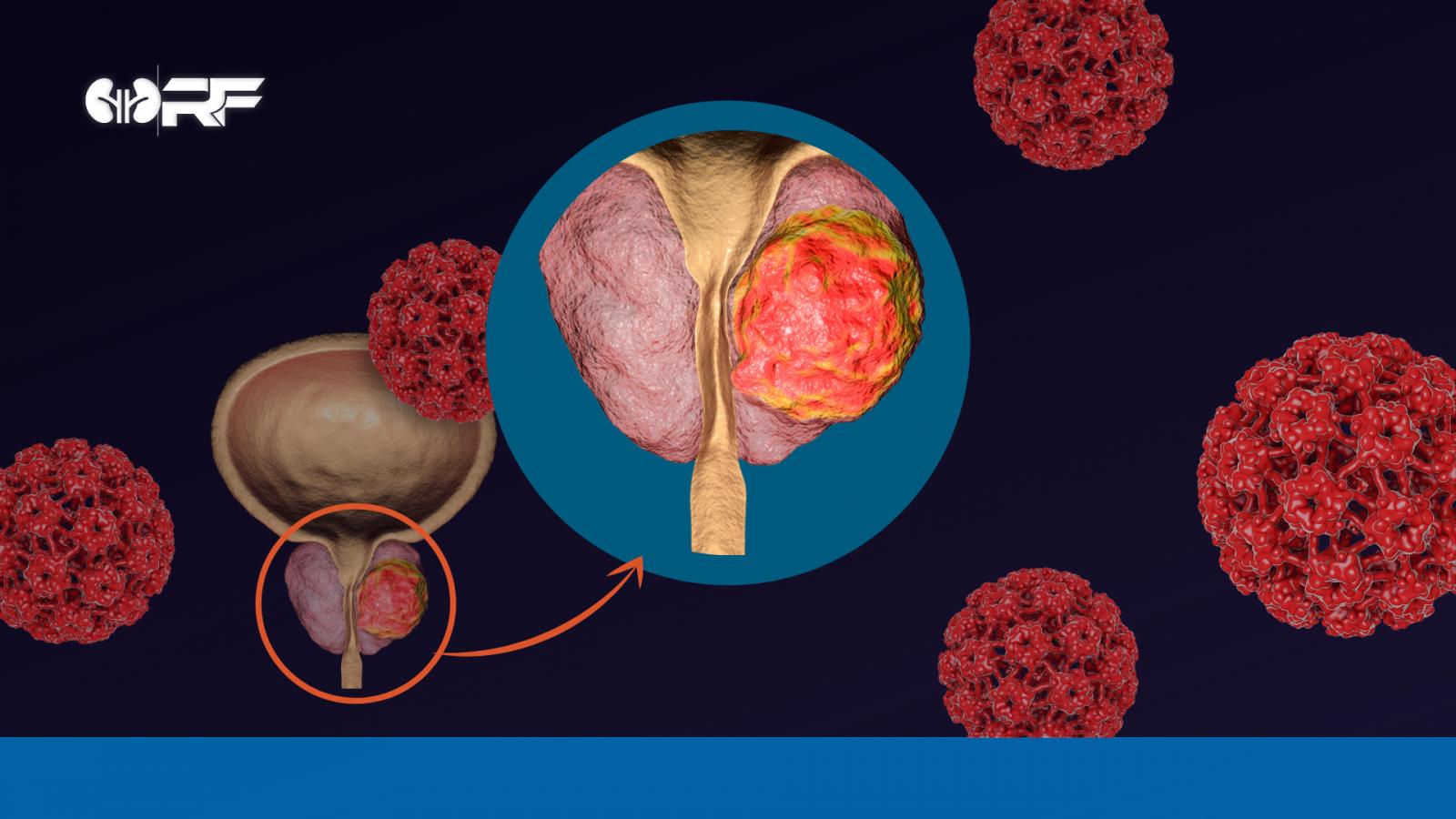 Câncer de próstata: o que você precisa saber